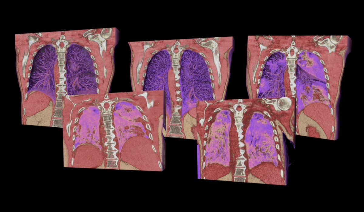 five phases of covid-19 lung CT scans