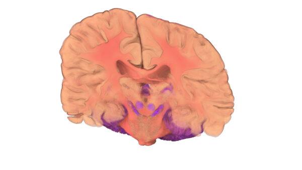 Brain_12