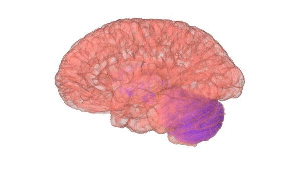 Brain_16