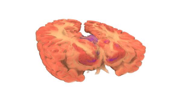 Brain_20