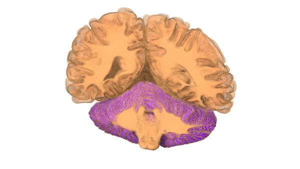 Brain_22