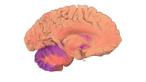 Brain_8