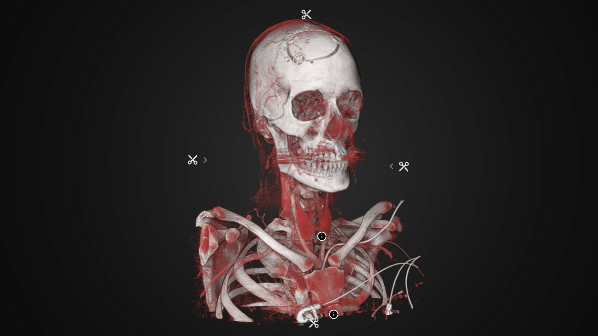 Interactive 3D-visualization of human skeleton with veins exhibited in Inside Explorer